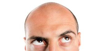 Co powoduje i czym leczyć łysienie u mężczyzn