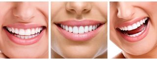 Co warto wiedzieć o wybielaniu zębów? cz. 1