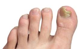 Najlepsze produkty na grzybicę paznokci